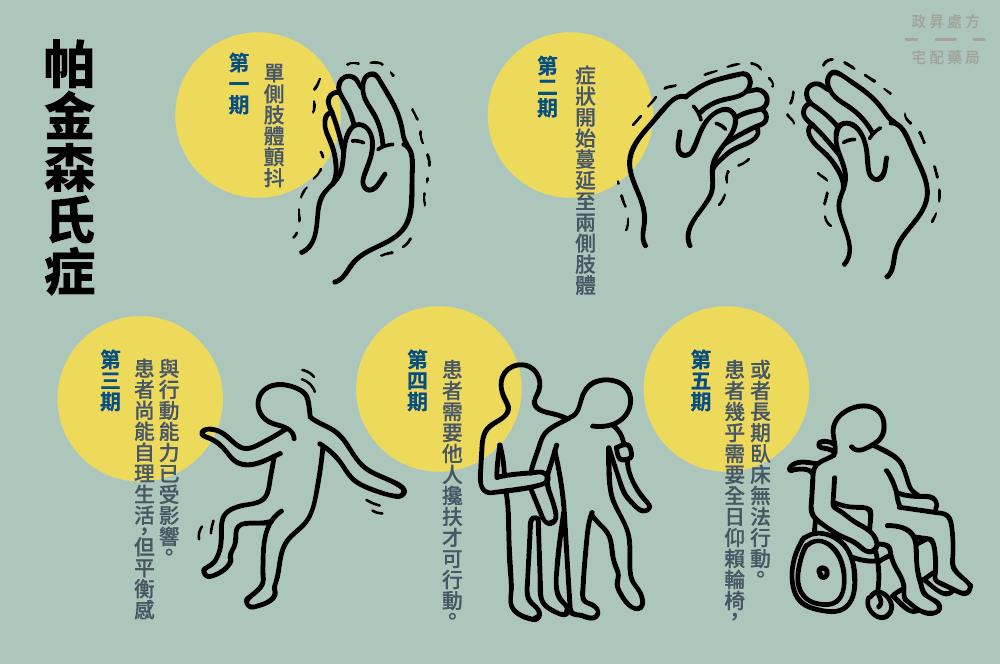 帕金森氏症五個分期的手部與肢體狀況