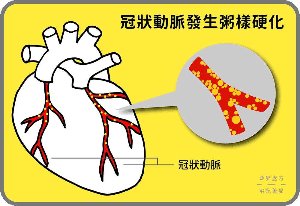 粥樣硬化指血管被廢棄物阻塞